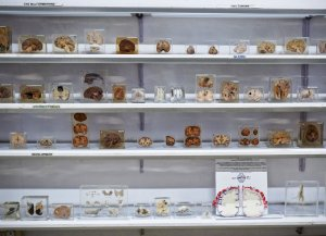 dissected specimens of brains